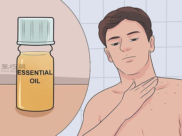 如何预防跳蚤叮咬 13